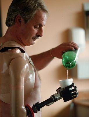 Un hombre recupera funciones motrices gracias a una protesis biónica